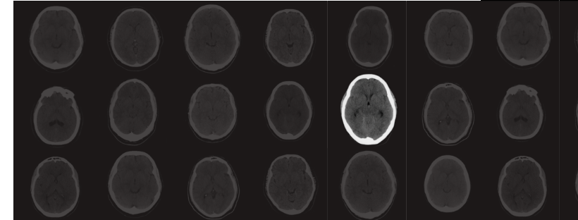 AI in Radiology: Making an impact today and charting a path to the future